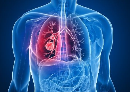 Health Problems Abound With Mesothelioma
